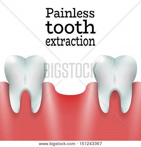 Teeth Family with Exctracted Tooth in Healthy Gum.Dental Pain free Tooth Extraction Surgery Dentistry Vector Illustration.Medical Conception Tutorial for Tooth Clinic.Oral Surgery for Dental Clinic