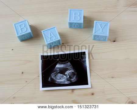 Sonogram of a small baby on a wooden background.