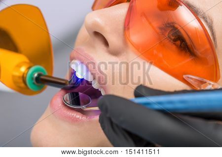 Nice girl in orange UV protective glasses. Her teeth treated with the help of a dental UV curing light lamp and a dental mirror. Macro photo. Horizontal.