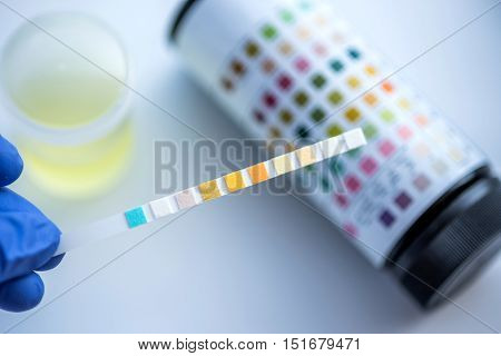Reagent Strip For Urinalysis , Routine Urinalysis, Check-up Analysis In Laboratory.