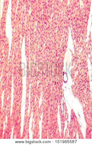 Heart muscle, light micrograph. Striated cardiac muscle cells myocytes. Light microscopy, hematoxilin and eosin stain, magnification 100x