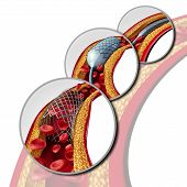 Angioplasty and stent concept as a heart disease treatment symbol diagram with the stages of an implant procedure in an artery that has cholesterol plaque blockage being opened for increased blood flow as a 3D illustration. poster