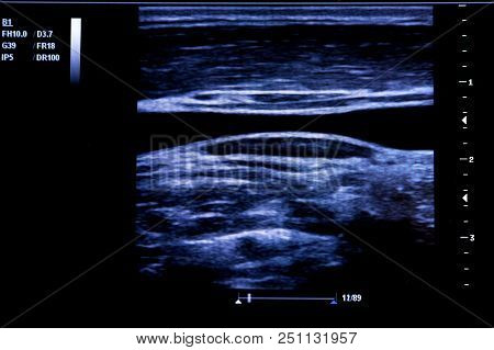 Colourful Image Of Modern Ultrasound Monitor. Ultrasonography Machine. High Technology Medical And H