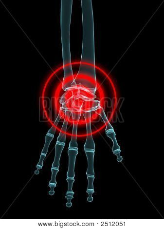 Hand Joint Inflammation