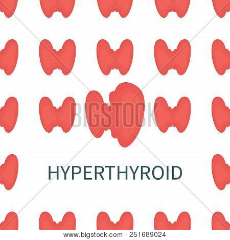 Hyperthyroid Medical Poster. Pattern Of Healthy Thyroid Glands With One Overactive Organ Affected By