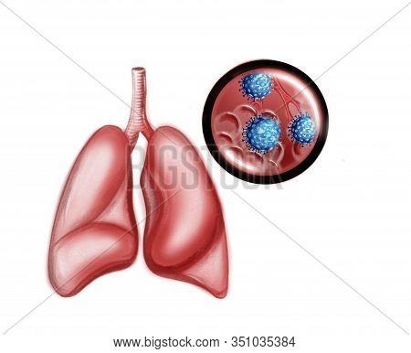 Illustration Of The Human Lungs And Coronavirus