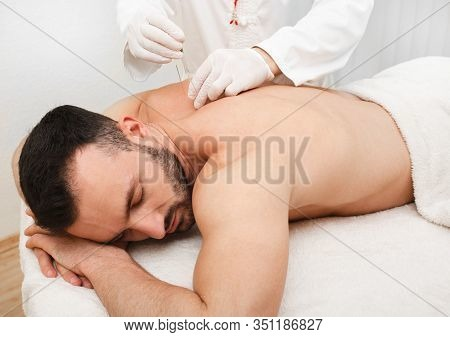 Reflexologist Doing Acupuncture To Treat Male Patient. Acupuncture Is Part Of Traditional Chinese Me