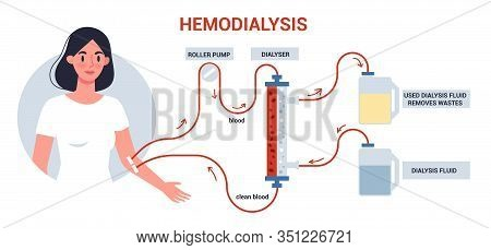 Hemodialysis For Kidney Treatment Infographics. Woman Get A Kidney