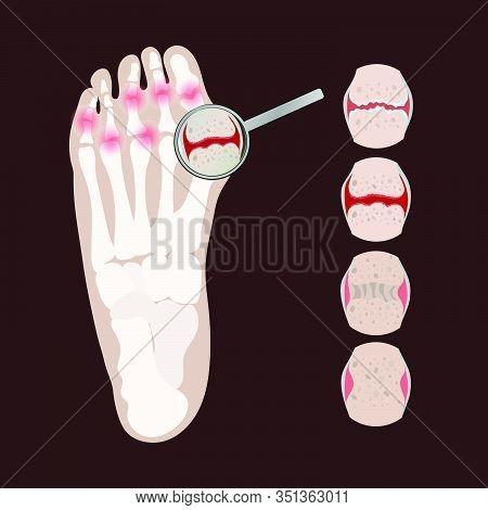 Artritis Leg Rheumatoid Chronic Disease Medicine Education Diagram Vector Scheme Human Hand Draw Vec