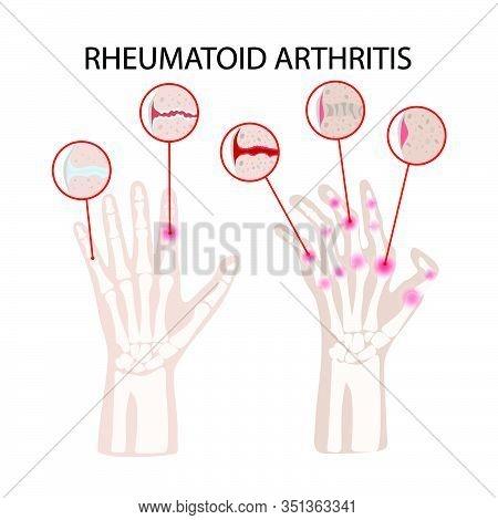 Rheumatoid Artritis Disease Chronic Illness Medicine Education Diagram Vector Scheme Human Hand Draw
