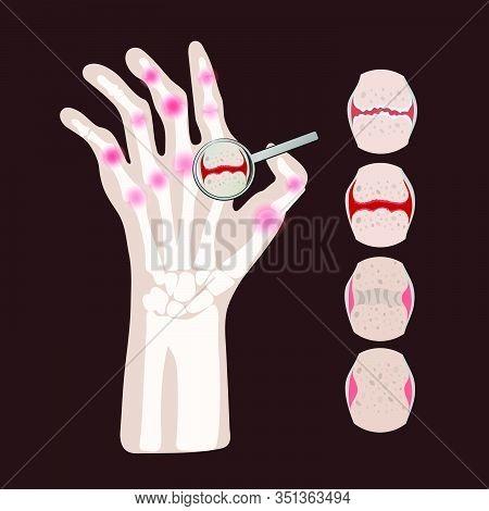 Rheumatoid Disease Artritis Chronic Illness Medicine Education Diagram Vector Scheme Human Hand Draw