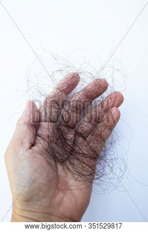 Woman Losing Hair In Hand On White Background, Close Up Shot, About Beauty Concept