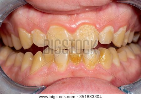 Tartar Close-up On The Lower Anterior Incisors. Dental Hygiene Of Teeth