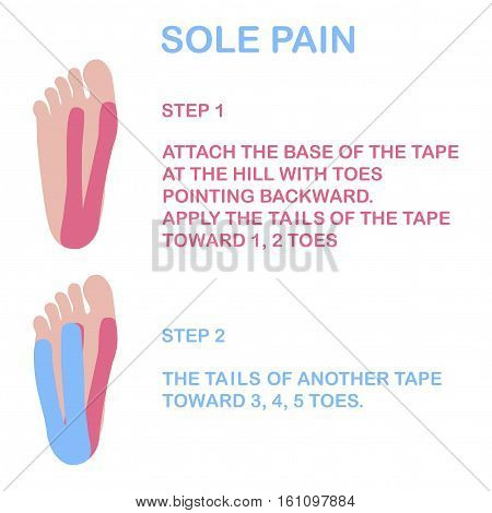 Sole pain. Correct kinesiology taping. Vector illustration.