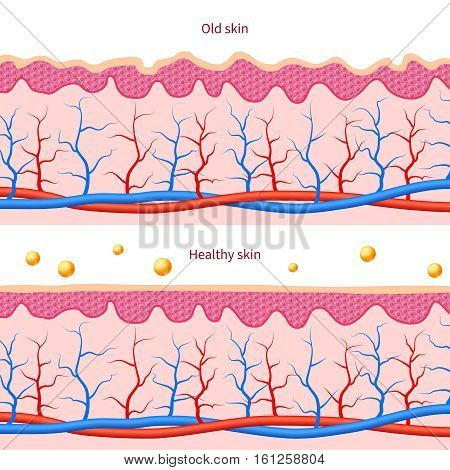 Collagen human skin effect. Close up damaged old and healthy vector medical skin care cosmetic diagrams. Layer of himan skin illustration