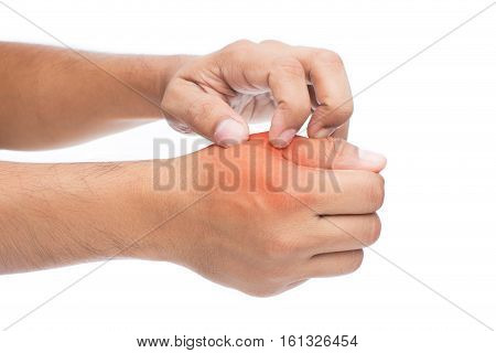 The man is itching hands isolate on white background