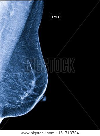 X-rays of the Breast Cancer for a doctor examination.