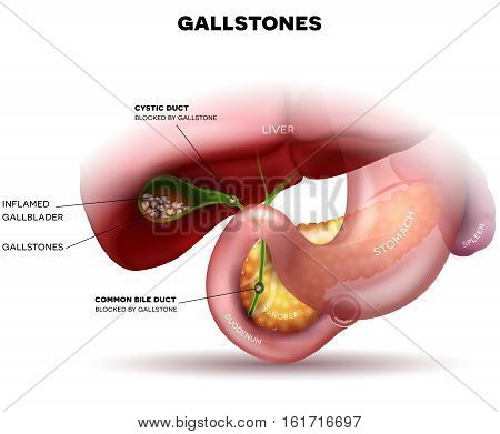 Stones In The Gallbladder And Anatomy Of Other Surrounding Organs