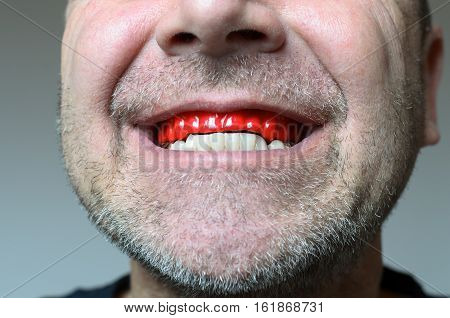 Man Biting On A Bite Plate In His Mouth