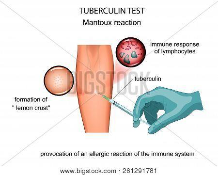 Vector Illustration Of A Tuberculin Sample. Mantoux