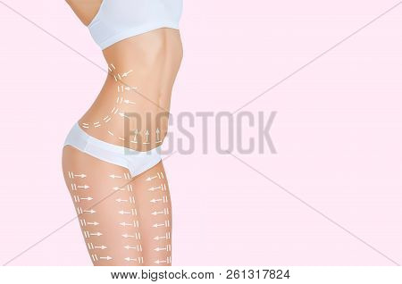 The Cellulite Removal Plan. White Markings On Young Woman Body Preparing For Plastic Surgery. Concep