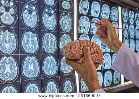 A Neurosurgeon Holding Human Brain Model And Pointing At Brain Mri On Lightbox In Medical Office