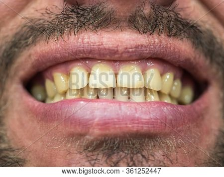 Close-up Photo With Focus In The Middle Of The Male Part Of The Face With A Grin With A Plaque On Th