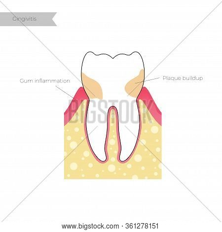 Vector Flat Isolated Illustration Of Tooth With Gingivitis. Teeth Anatomy Infographics. Medical Bann