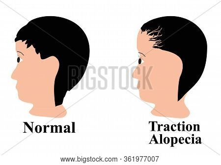 Alopecia Hair. Baldness Of Hair On The Head. Traction Alopecia. Infographics. Vector Illustration On
