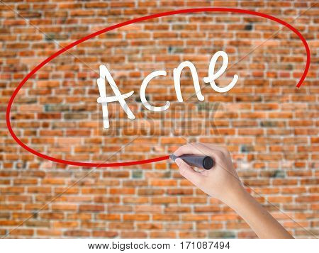Woman Hand Writing Acne With Black Marker On Visual Screen