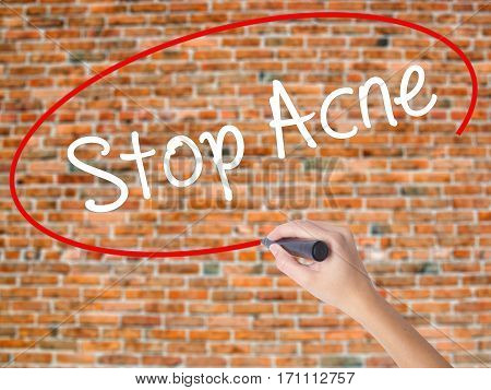 Woman Hand Writing Stop Acne  With Black Marker On Visual Screen.