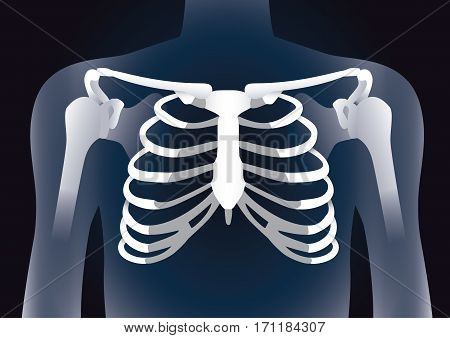Human rib cage in X-ray image concept. Illustration about damage inside body.