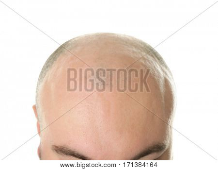 Bald adult man on white background, closeup