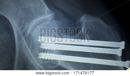 Hip Screw Implant Xray Scan
