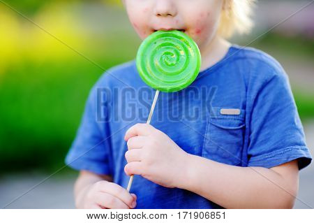 Child With Allergic Reaction Eating Big Green Lollipop