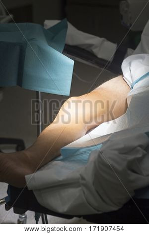 Knee Surgery Surgical Operation
