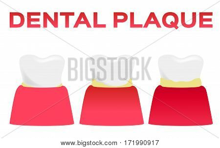 dental plaque vector . tooth and gum