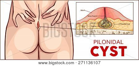 Vector Illustration Of A Pilonidal Cyst Formation