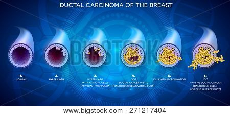 Ductal Carcinoma Of The Breast, Detailed Medical Illustration. At The Beginning Normal Duct, Then Hy