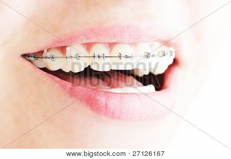 Teeth with braces, beautiful female smile, dental care concept