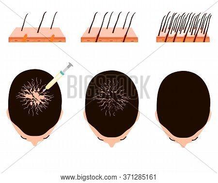Treatment Of Alopecia. Bald Spot, Baldness, Alopecia Mesotherapy. Infographics. Illustration On Isol