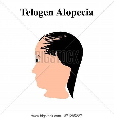 Alopecia Hair. Baldness Of Hair On The Head. Telogen Alopecia. Infographics. Illustration On Isolate