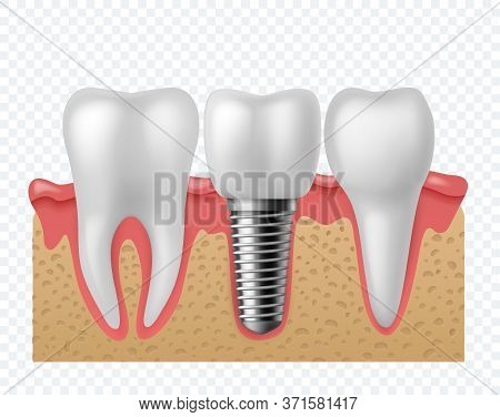 Tooth Implant. Human Teeth And Dental Implant, Denture Orthodontic Technology. Artificial Teeth Dent