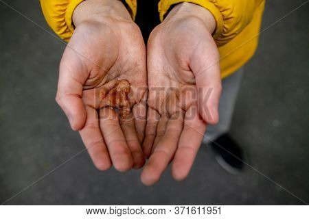 Dirty Hands Of A Teenager. Unsanitary Conditions. Diseases And Epidemics. Pollution. Hygiene.