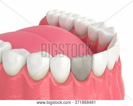 3d Render Of Lower Jaw And  Incisor Tooth With Dead Pulp