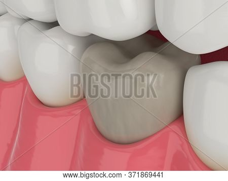 3d Render Of Jaw And Lower Molar Tooth With Dead Pulp