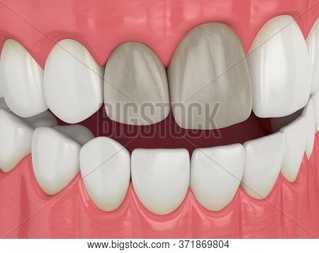 3d Render Of Jaw And Upper Incisor Teeth Tooth With Dead Pulp