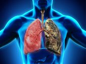 Healthy Lung and Smokers Lung. 3D render poster