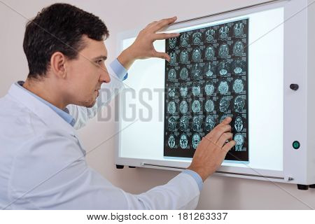 Professional doctor. Nice pleasant male oncologist holding the radiograph and looking at it while looking for the problem