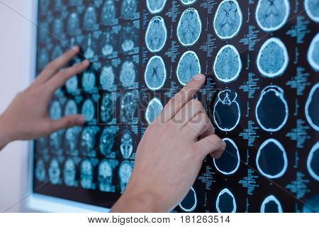 Professional medicine. Close up of x ray images of human brain being put on the whiteboard by a nice professional oncologist